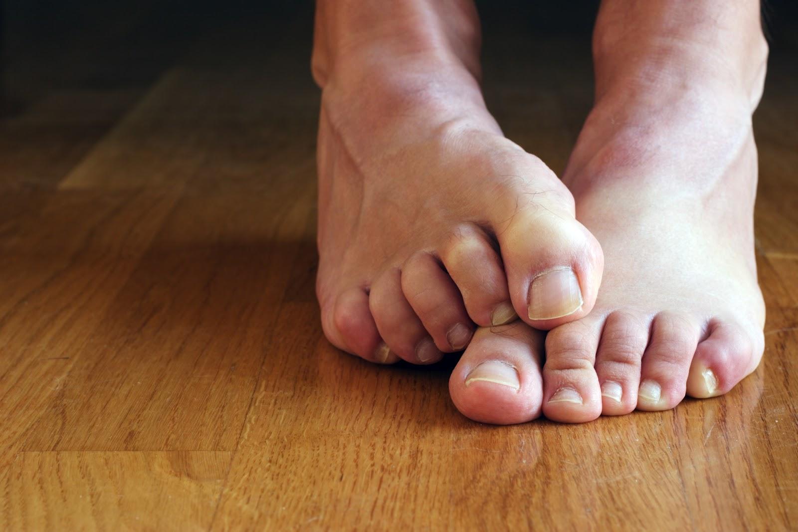 грибок стопы на полу, чем от него избавиться