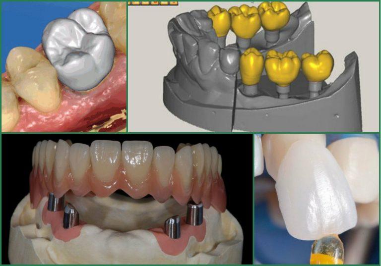 Кировские стоматологи стали использовать в зубопротезировании новую технологию